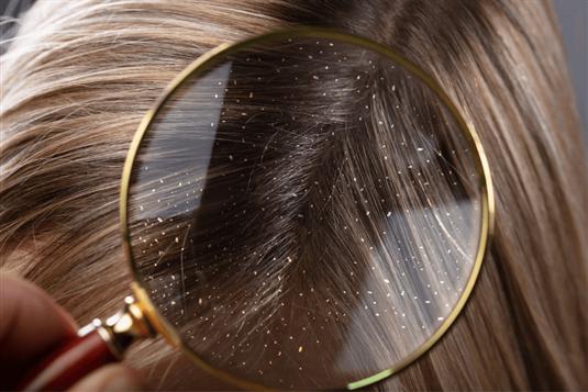 Pleiskanos galvoje - kodėl atsiranda ir kaip gydyti