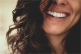 Dantų balinimas: geriausios klinikos Vilniuje