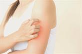 Egzema - ką būtina žinoti ir kaip gydyti?