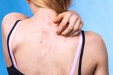 Spuogai ant nugaros – kaip gydyti?