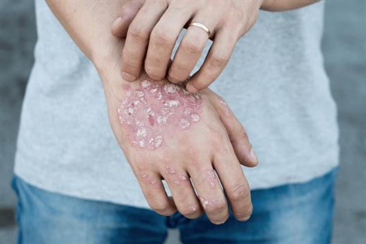 Žvynelinė: atsiradimo priežastys, simptomai ir gydymas