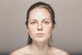 Hiperpigmentacija - kas tai?