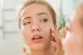Kaip tinkamai rūpintis sausa oda?