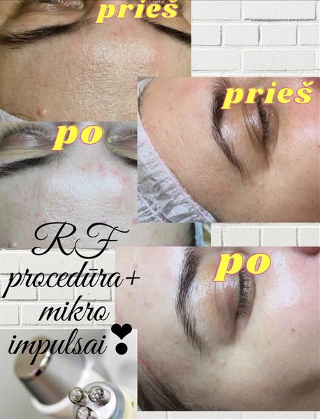 RF procedūra+ mikro impulsų terapija