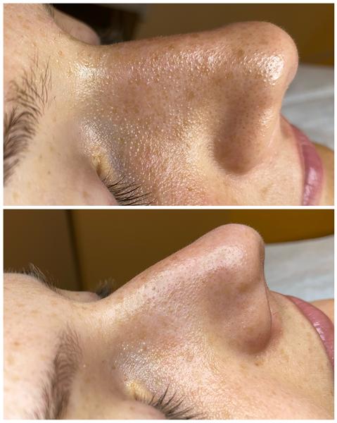 Ultragarsinis veido valymas ir odos drėkinimas (sonoforezė).