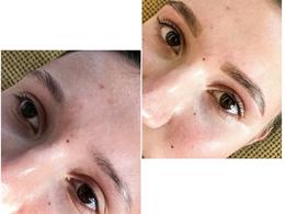 The Skin Blossom - Kosmetologė Monika