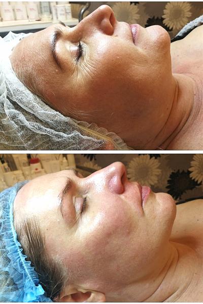 Rūgštinės procedūros + Starvac veido masažas
