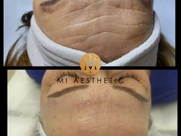 MI Aesthetic - Estetikos klinika