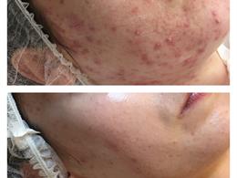 LeSkin Clinica - Med. kosmetologė Margarita Kazakevič