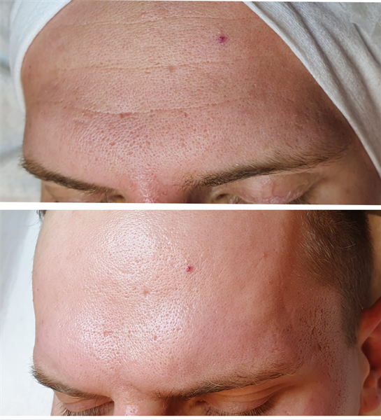 Cell Fusion - Tox peel procedūra